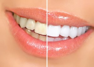 Teeth Whitening in Marietta, GA